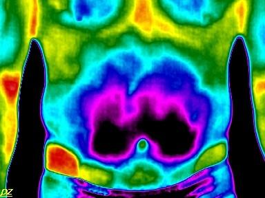 Krónikus prosztatagyulladás 1 fok